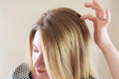 Remedies to get rid of Itchy scalp