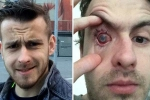 contact lens users, contact lens in shower, contact lens wearers beware man goes blind after parasites eat man s eye as he wore lenses in shower, Christmas