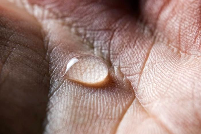 10 Ways To Treat Sweaty Hands And Feet