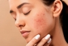 10 ways to get rid of Pimples at home