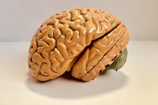 Indians Have Smaller Brains, A Study Revealed